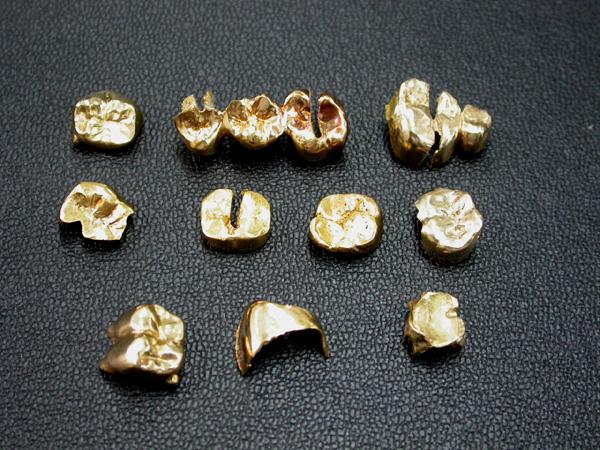 DSCN8297.jpg 金歯